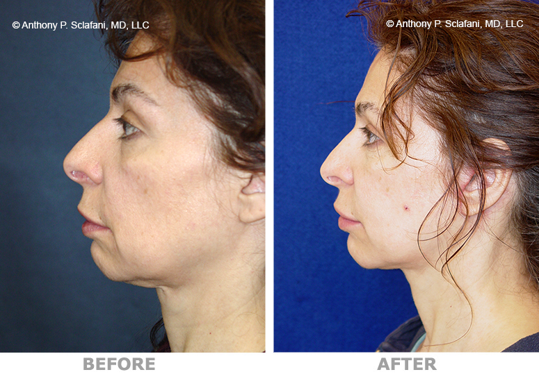 facelift--fat-l-lateral.jpg